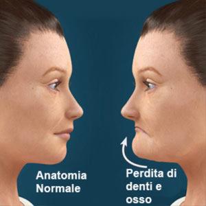 dentista Capriolo specialista in impianti