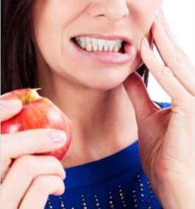 dentista Cellatica clinica dentistica per denti fissi